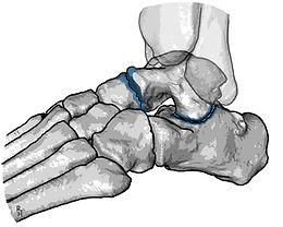 Osteoarthritis of the talonavicular and the subtalar joints