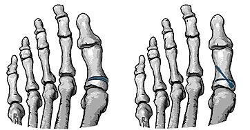 Akin procedure