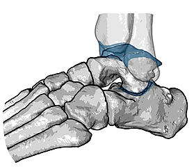 Arthrodesis of ankle and subtalar joints