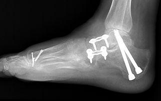 Tripple arthrodesis of foot