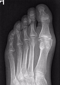 X-ray hallux rigidus