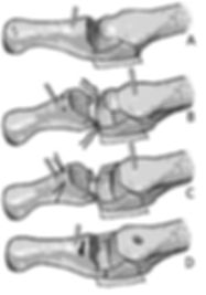 Reconstruction of plantar plate