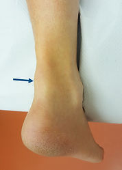 Tendosynovialitis of Achilles trendon