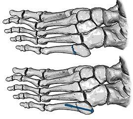 Fracture of fifth metatarsal bone, Jones fracture