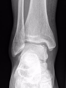X-ray osteochondral defect of talus