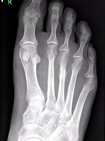 Stress fracture of metatarsal