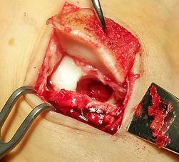 Osteochondal defect