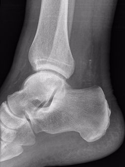 Osteochondral defect of talus