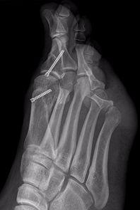 L chevron osteotomy and Akin osteotomy