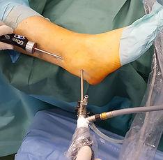 Tendoscopy of peroneal (fibular) tendons