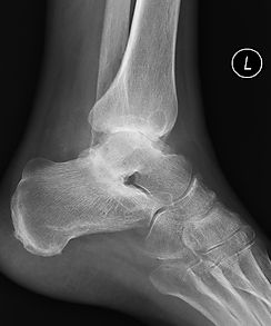 Osteoarthritis of the subtalar joint