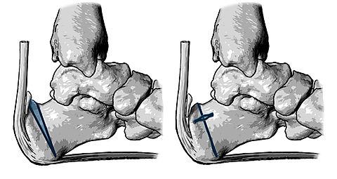 Zadek osteotomy