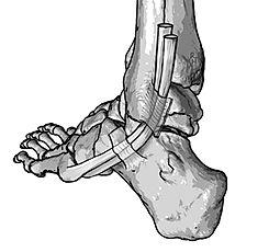 Fibular (peroneal) tendons