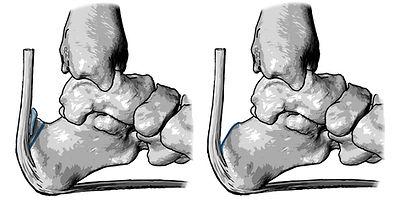 Haglung's deformity