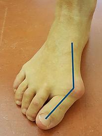 Flat foot; hallux valgus