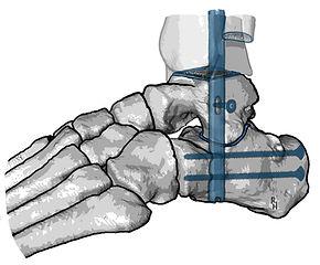 Pantalar arthrodesis of ankle joint