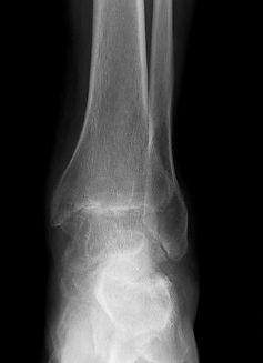 Osteoarthritis of ankle joint
