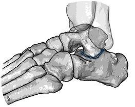 Osteoarthritis of the subtalar joint