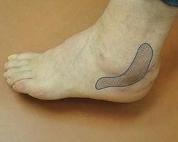 Fibular (peroneal) tendosinovialitis