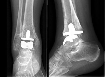 TAR, total ankle replacement