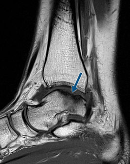 Osteochondral leasion of the talus