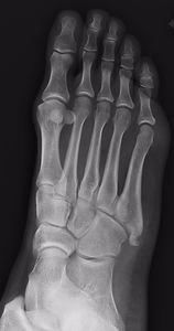 Avulsion fracture of 5th metatarsal bone