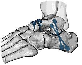 Double arthrodesis of foot