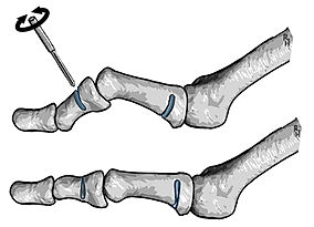 Miniinvazive osteotomy of a lesser toe's bones