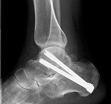 Arthrodesis of the subtalar joint