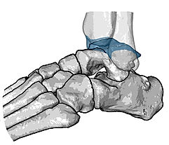 Arthrodesis of ankle joint