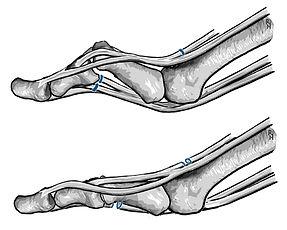 Tenolysis of tendons; toe deformity