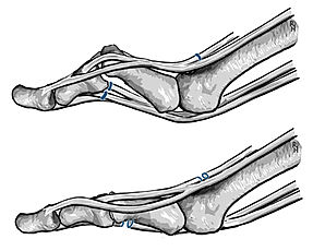 Tenolysis of tendons; toe deformity