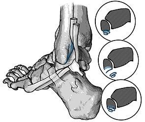 Groove deepening procedure; Fibular tendon dislocation