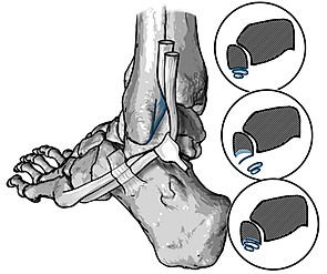 Groove deepening procedure; Fibular tendon dislocation
