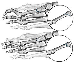 BRT (Barouk-Rippstein-Toullec) procedure of metatarsal