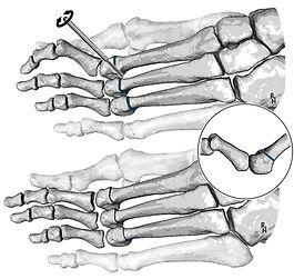 Distal metatarsal minimally-invasive osteotomy