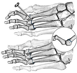 Distal metatarsal minimally-invasive osteotomy