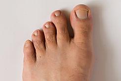Časté diagnózy, ortopedie nohy