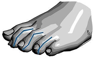 Deformities of lesser toes