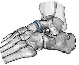 Osteoarthritis of the talonavicular joint