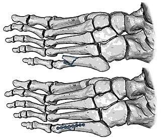 Fracture of fifth metatarsal bone