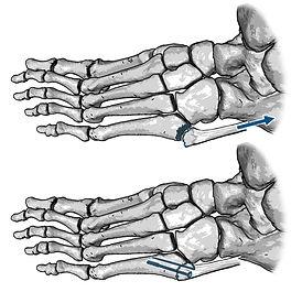 Fracture of fifth metatarsal bone, Dancer's fracture