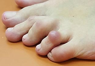 Deformites of lesser toes