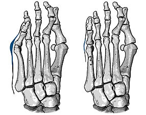 Osteotomy of fifth metatarsal
