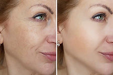 botox-cosmetic-houston.jpg