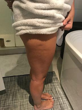 Lauren M Before-Cellulite.JPG