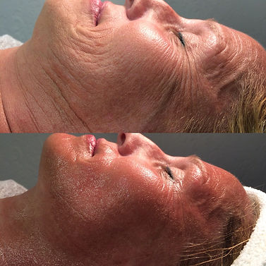 Before and After Side CryoToning Face