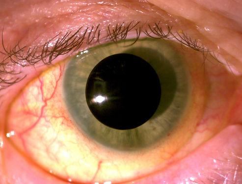 Prosthetic contact lens arizona scottsdale