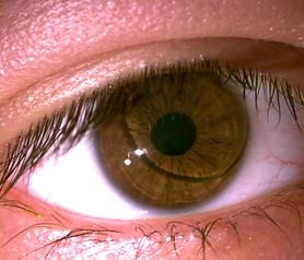 RGP Lens Dr. Morrison.tif