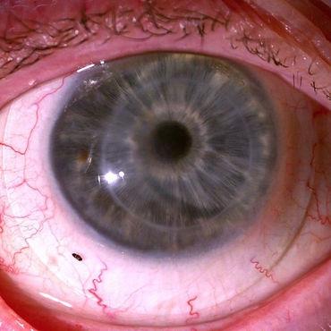 Corneal Transplant Scleral Lens Arizona Scottsdale Dr Caitlin Morrison